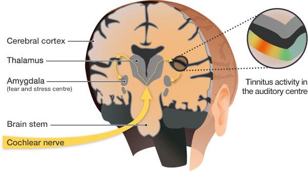 brain-tinnitus