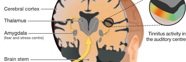 tinnitus-brain